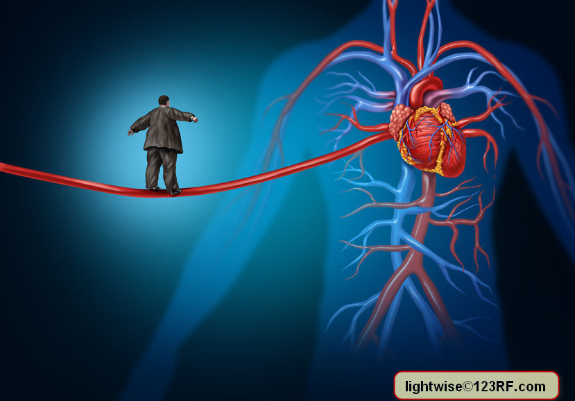 Risk factors for heart disease danger as a medical health care lifestyle concept with an overweight person walking on an elongated artery Copyright: lightwise / 123RF Stock Photo lightwise©123RF.com